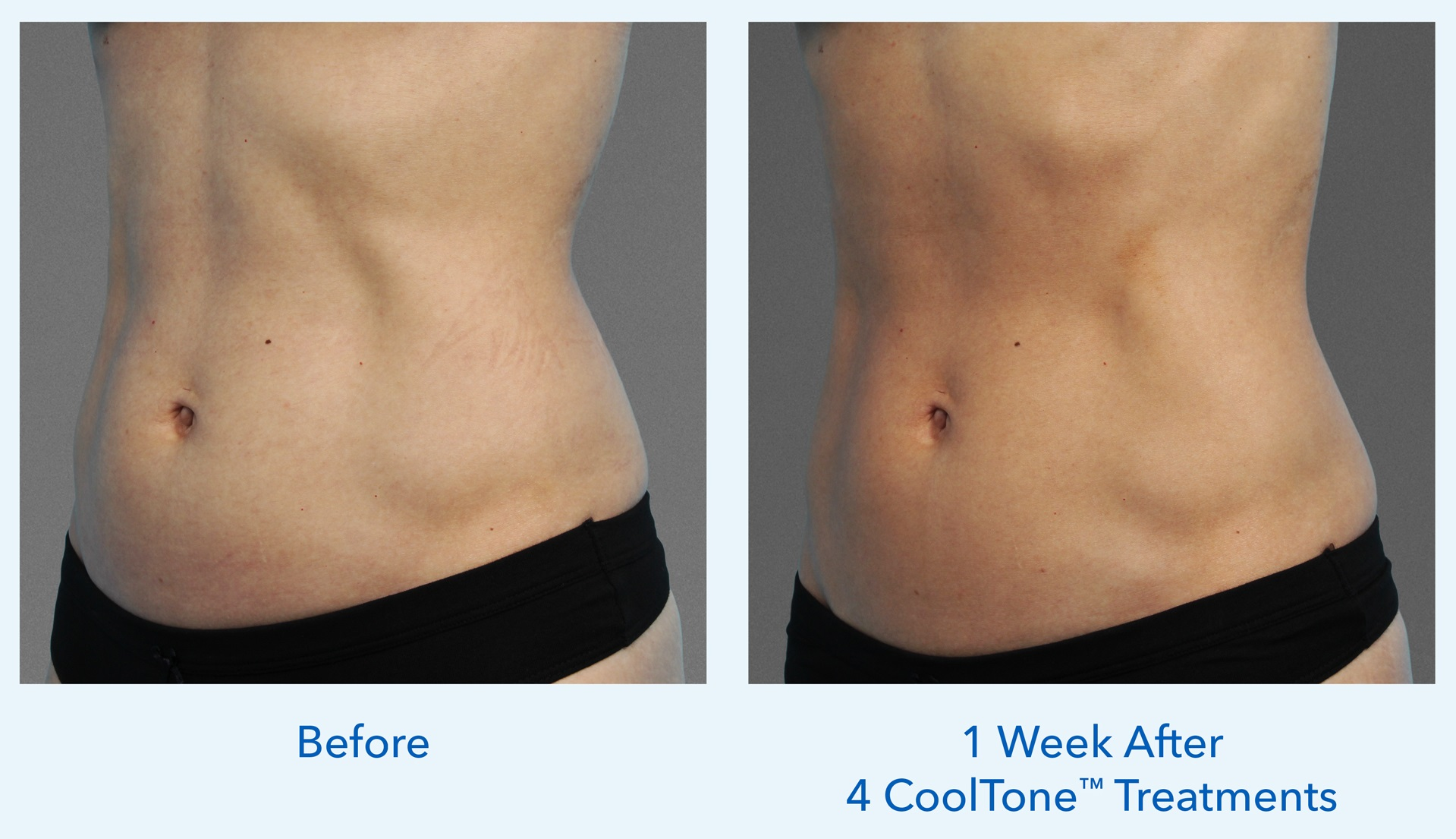 Before and After CoolTone™ Treatments