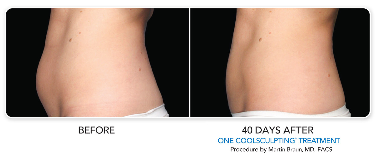 CoolSculpting Before and after 40 days on female stomach