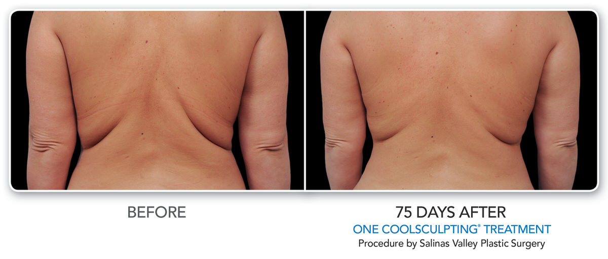 CoolSculpting Before and after 75 days on female back