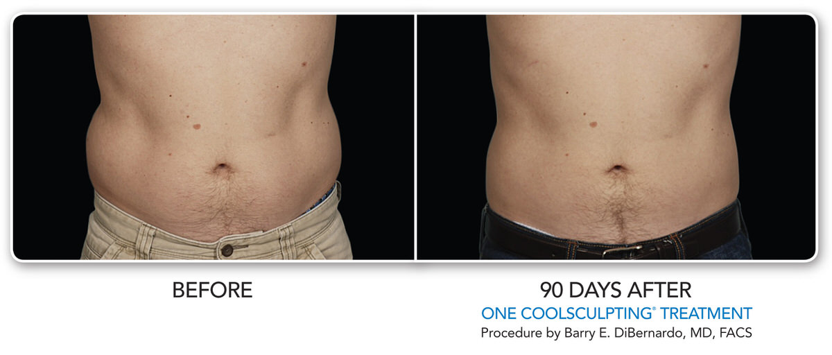 CoolSculpting Before and after 90 days on male stomach